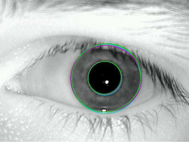 iris segmentation Solutions for iris segmentation 123 411 jpeg2000 compression jpeg2000 is an image coding system that was created by the joint photographic experts group committee in 2000 it is a more powerful version of jpeg coding offering improved image quality at very high compression ratios (information technology - jpeg2000 image coding system, 2004.